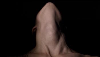 neck-shot